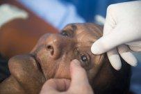 starsza kobieta podczas zabiegu korekcji wzroku
